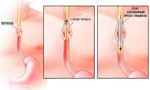 rak-pischevoda-rannie-simptomyi-i-priznaki-3.jpg