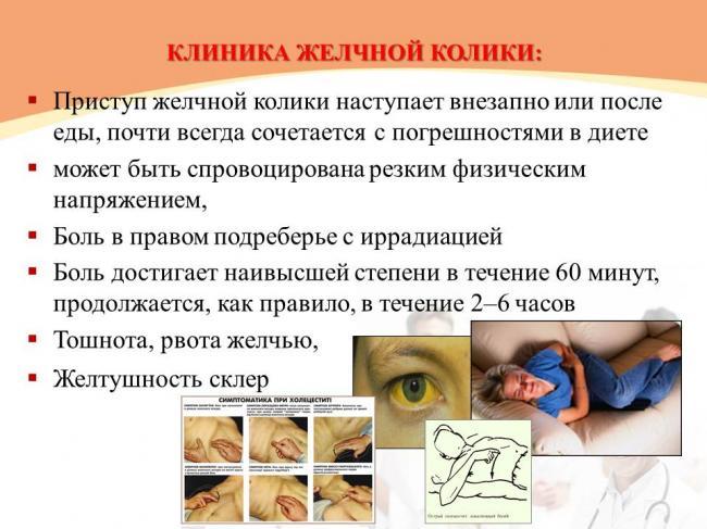 klinicheskaya-kartina-ostrogo-holecistita.jpg