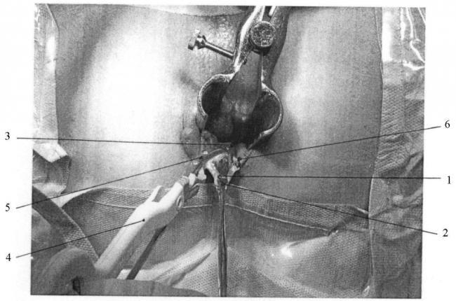 hirurgicheskoe-lechenie.jpg
