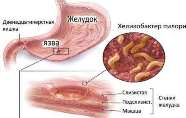 KHelikobakter-pilori-vnutri-pishhevaritelnoy-sistemy-600x382.jpg