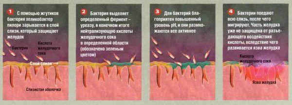 Mekhanizm-vozdeystviya-KHelikobakter-Pilori-na-ZHKT-600x216.jpg