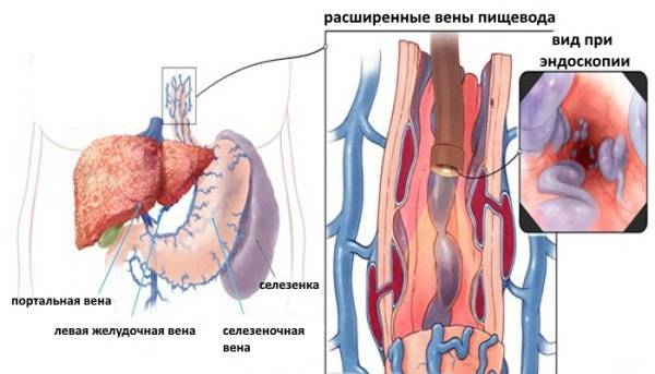 Varikoznoe-rasshirenie-ven-pishhevoda-1.jpg