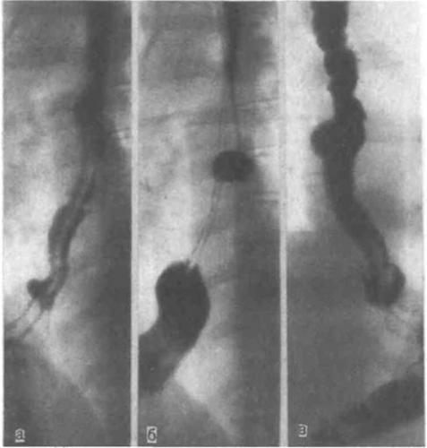 rentgenogramma-pri-diskinezii-pishchevoda.jpg