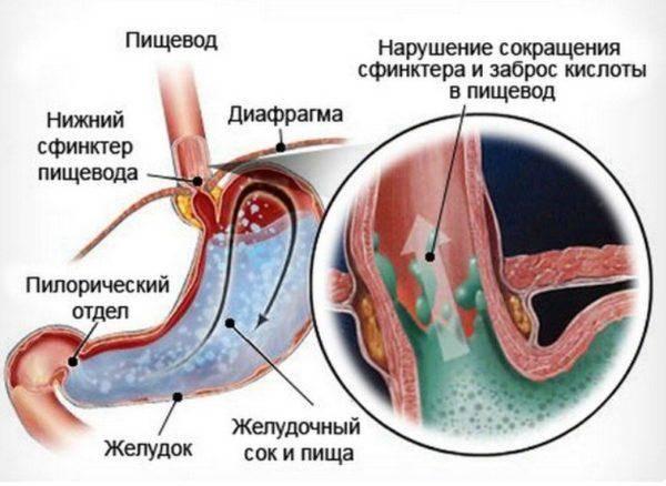 Gastroyezofagealnyy-reflyuks-1-600x438.jpg