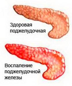 Zabolevanie-pankreatit.jpg