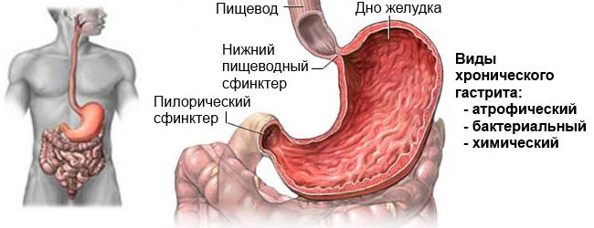 chronic_gastrit.png