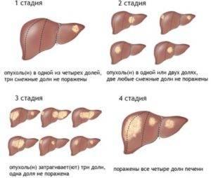 gemangiomap-pecheni-8-1-300x254.jpg