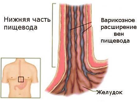 varikoznoe-rasshirenie-ven-pischevoda-1.jpg