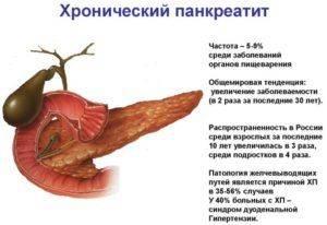 Hronicheskij-pankreatit-7-e1511357447824-300x206.jpg