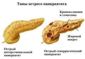 Ostryj-pankreatit-1-300x210.jpg