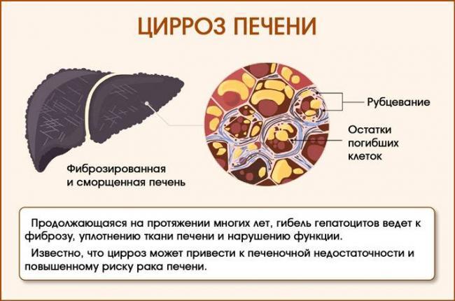 portalnaya-gipertenziya-pri-cirroze-pecheni_22.jpg