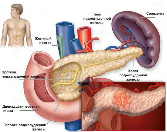 pankreatit-5.jpg