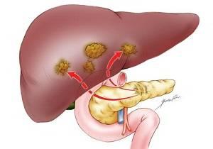 рак поджелудочной железы 4 стадия сколько живут