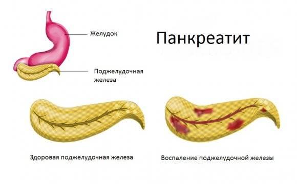pankreatit.jpg