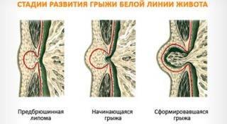 Stadii-razvitija-jepigastralnoj-gryzhi_cr-320x176.jpg