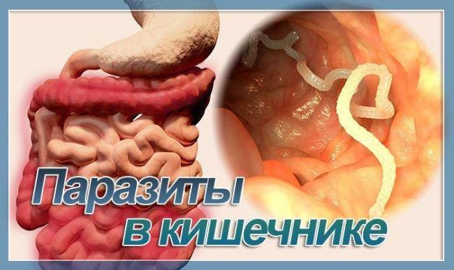 parazkish.jpg