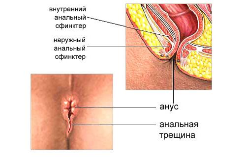 analnyye-treshchiny.png
