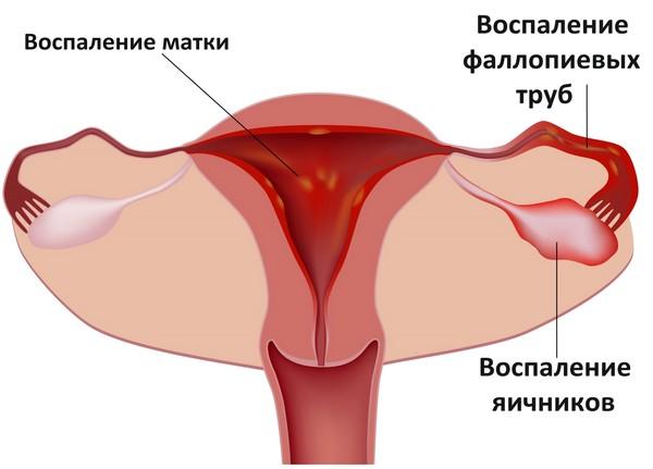 vospaleniye-yaichnikov.png