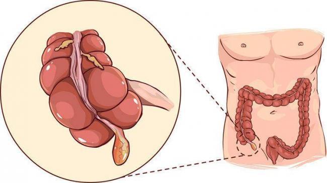 simptomy-appendicita.jpg