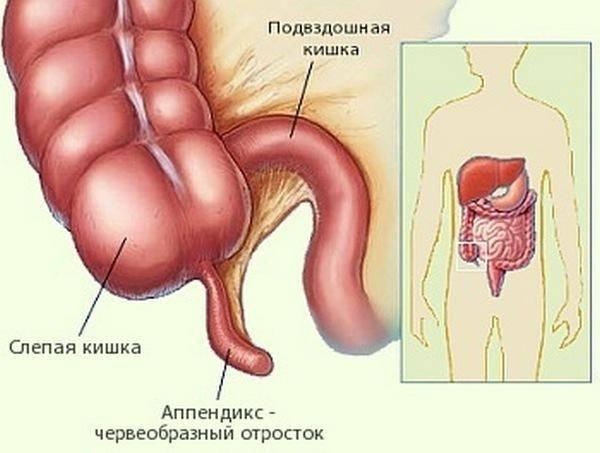 Признаки-аппендицита-у-подростка-1.jpg