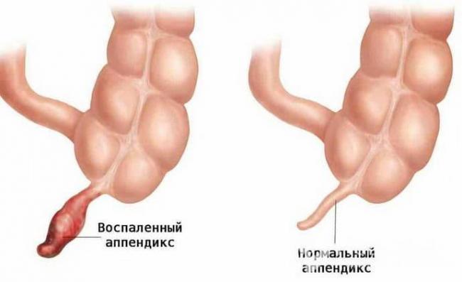 vosstanovlenie-posle-appenditsita-1.jpg