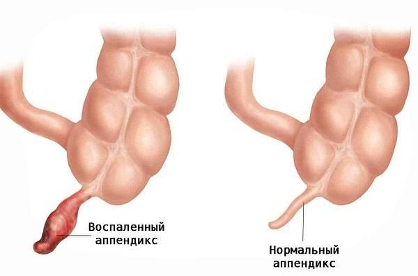 Gangrenoznyj-appenditsit-1.jpg