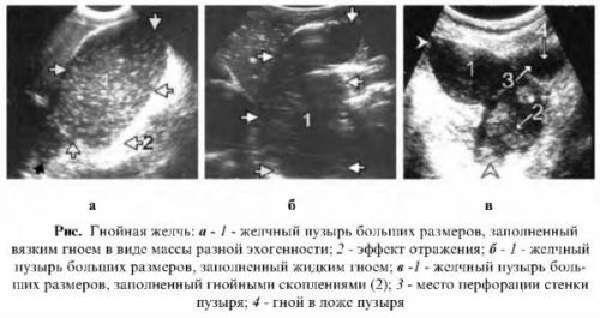anehogennoe-soderzhelpuz-2-500x265.jpg