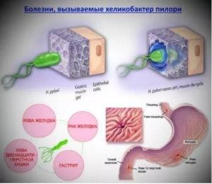 olx.ua-image-300x260.jpg