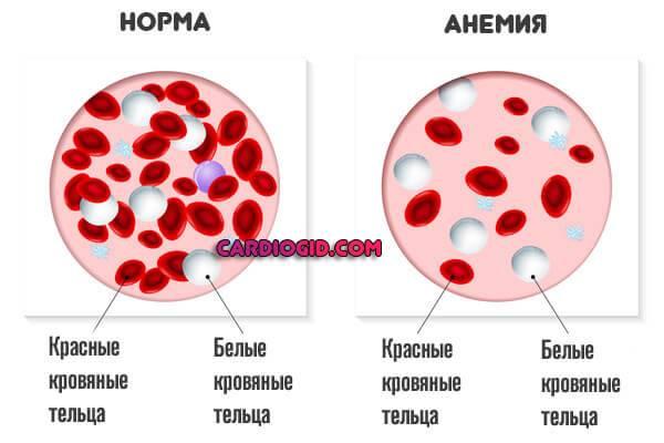 anemiya.jpg