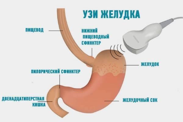 UZI-zheludka-2.jpg