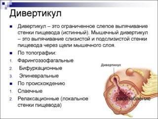 slide-2-320x240.jpg