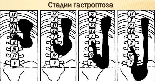 stadii.jpg
