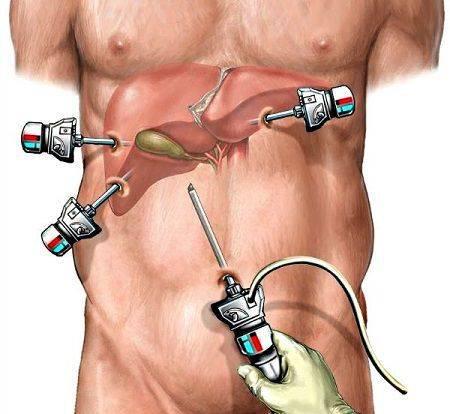 laparoskopicheskaya-holecistektomiya_s.jpg