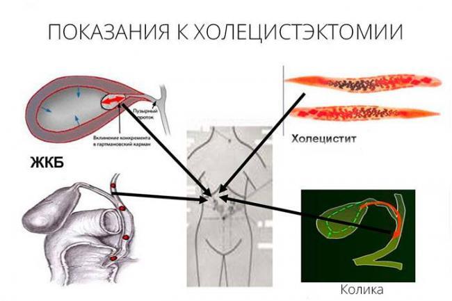 holetsistektomiya-2.jpg