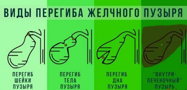 vidy-peregibov-zhelchnogo-puzyrya.jpg
