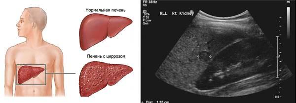 opredelenie-cirroza-pecheni-pri-ultrazvukovoj-diagnostike.jpg