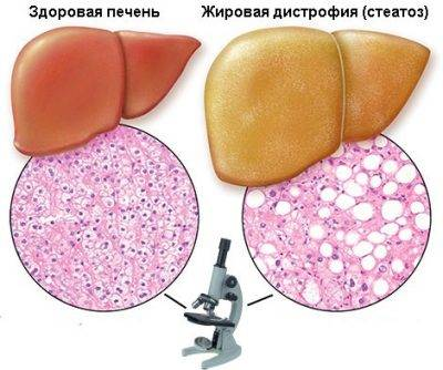 distrofiya-pecheni-1-e1544558230766.jpg
