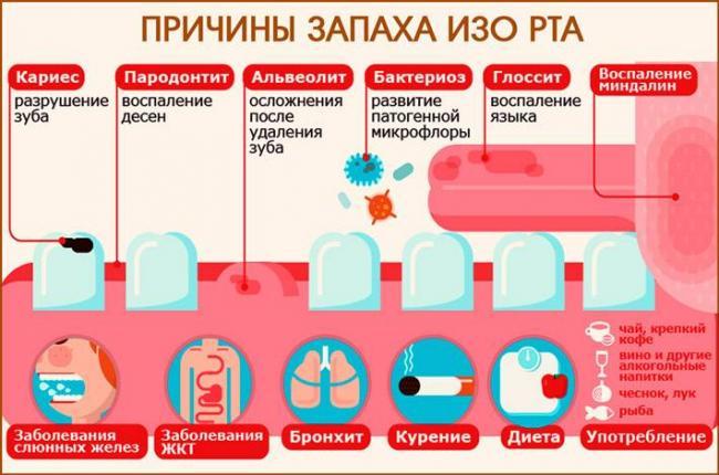 zapah-izo-rta-iz-za-pecheni_22.jpg