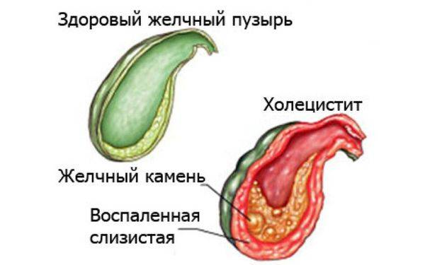 cholecystitis.jpg