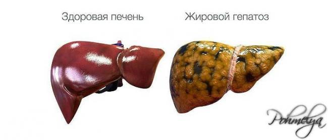 jurovoi_gepatos_pohmelya_v2987-min.jpg
