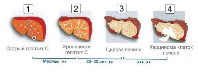 stadii-gepatita-s.jpg