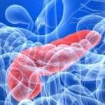 Неотложная-помощь-при-остром-панкреатите-150x150.jpg
