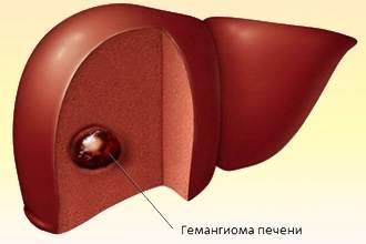 gemangioma1.11.jpg