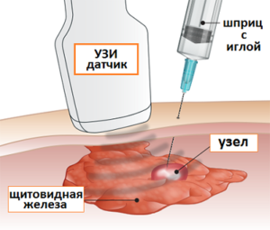 Tonkoigolnaya-aspiracionnaya-biopsiya-300x255.png
