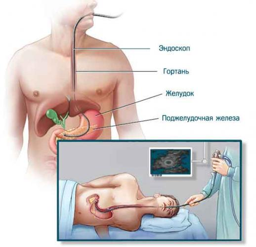 endoscope-02.jpg