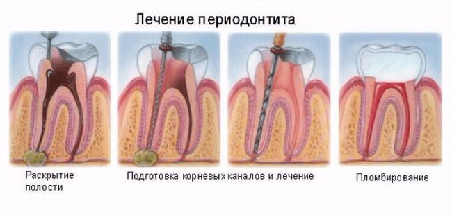лечение.png