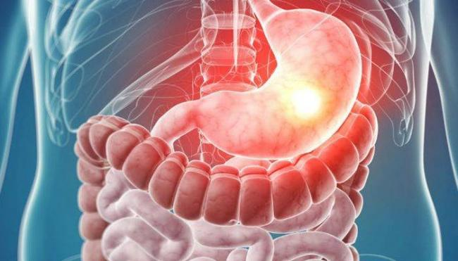 neinfektsionnyy-gastroenterit-1-700x400.jpg