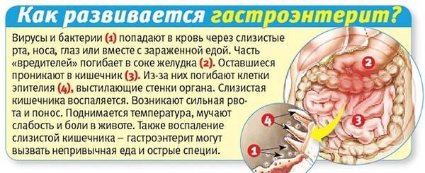 mekhanizm-razvitiya-gastroenterita.jpg