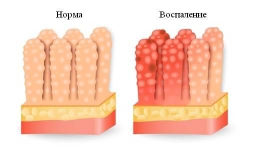 vospaleniye-pri-gastroenterite.jpg