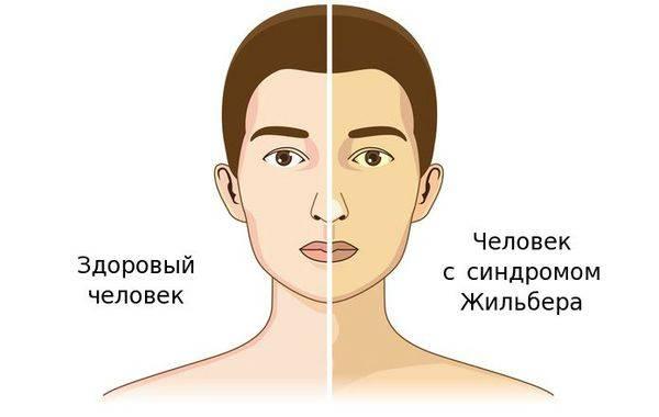 zdorovyy-chelovek-i-chelovek-s-sindromom-zhilbera_s.jpg
